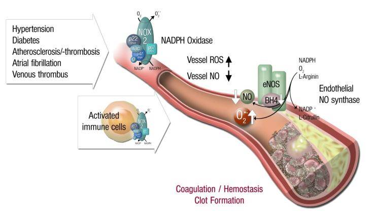 Inflammatory cells, vascular dysfunction and atherothrombosis. The scheme illustrates the activation of immune cells and recruitment to vascular tissues leading to activation of secondary RONS sources such as NADPH oxidase and uncoupled eNOS, all of which contributes to vascular dysfunction. These processes lead to late-stage cardiovascular complication such as atherosclerosis with plaque formation and thrombosis. Vice versa, vascular RONS can activate immune cells and Trigger their Infiltration into the vascular wall. From Karbach et al. Curr. Pharm. Des. 2014. With permission of Bentham Science Publishers.